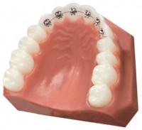 Appareil dentaire   Invisible (lingual), Invisalign, amovible ou fixe