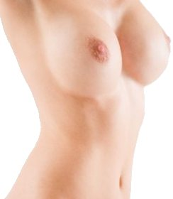Augmentation mammaire avec les implants mammaires