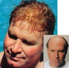 Prothèses capillaires & perruques à la chute
