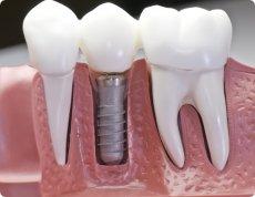 """Résultat de recherche d'images pour """"implants dentaires risques"""""""
