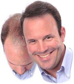 Tout sur la chute de cheveux (perte de cheveux)